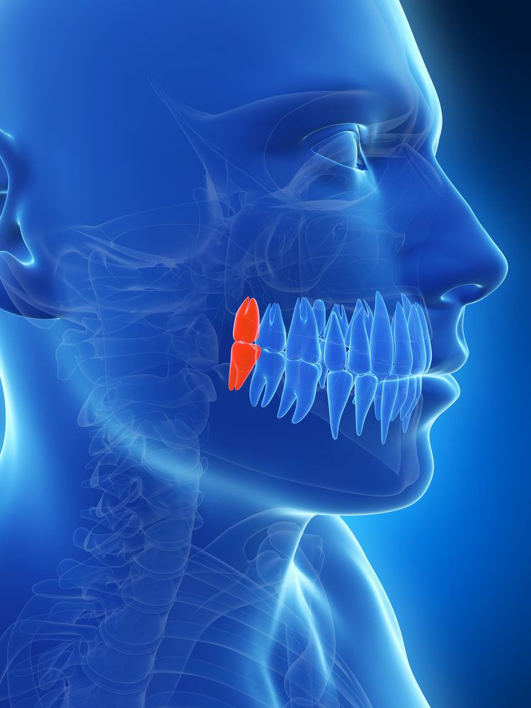 wisdom tooth highlighted
