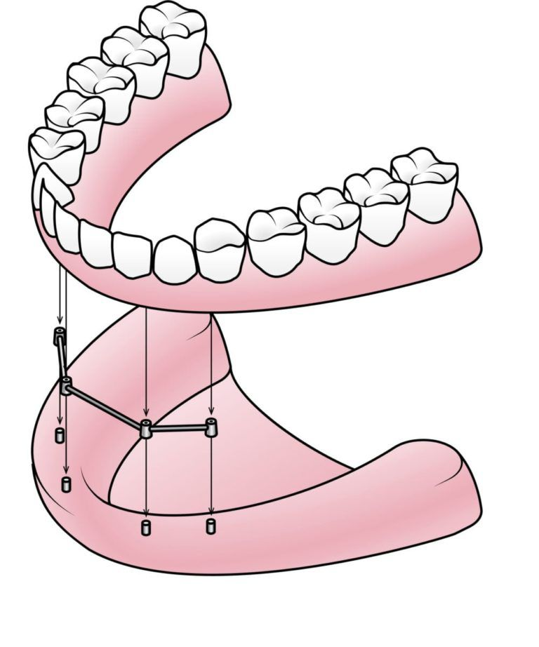 removable full denture attaching to a bar retainer